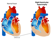 Increased Ventricle Walls
