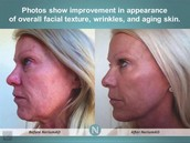 Tone & Texture, Aging Skin