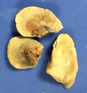 Liver-Digestive System