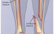 This is called a closed fracture where it does not go through the skin. This is caused by an extrinsic factor.