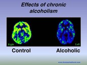 The differences between a non drinkers brain and a alcholics brain.