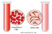 regular v, Sickle cell Red blood cells