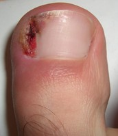 Ingrown toenails are a pain