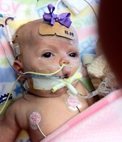 Baby with pertussis