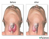 Thyroid Removal (surgery): shows what the doctor removes along with the before and after of the sugery