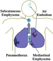 Air Embolisms Condition