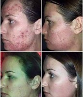 Control de acné