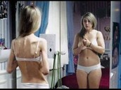 Distorted body Image
