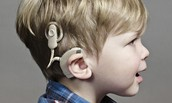 Cochlear Implants and hearing aids