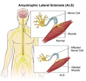 Some symtoms of ALS