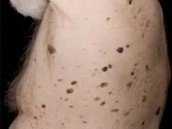 Dermatosis on the back