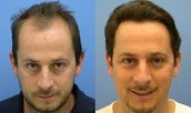 Low Cost Hair Transplant in India to Cure Hair Loss