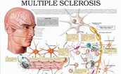 diagram of what multiple sclerosis does