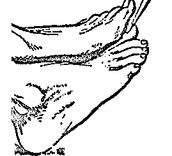 Toe Wedging