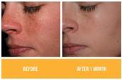 Reverse sun damage, melasma, & dark spots
