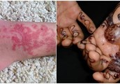 Riesgos de los Tatuajes Temporales a Base de Henna Negra