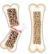 Left: Osteoporosis // Right: Regular