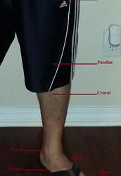 Photo 5 - Closeup of Leg