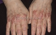 psoriasis hand.