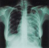 Туберкулез - серьезное инфекционное заболевание, обычно поражающее легкие.
