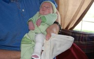 How to test for clubfoot? Treatments? Life Outlook?
