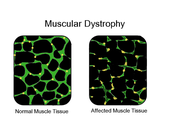 Facts and explanation of Duchenne's Muscular Dystrophy
