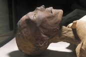 Smallpox Lesions Seen on the Ancient Egyptian Mummy, Ramses V