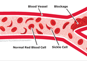 What is Sickle Cell Anemia?