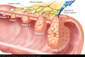 Beginnings of Colon and Rectal Cancer