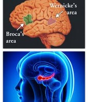 Areas Affected: Wernicke's Area, Broca's Area and Hippocampus