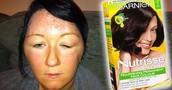 Una de las principales causas de los tintes para el cabello son quemaduras y alergias en la piel por su alto contenido de amoniacos.