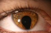 What is Cat Eye Syndrome?