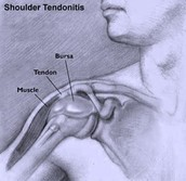 What organs of the body system does tendinitis affect the most?