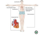 Diagram of body with Marfan Syndrome