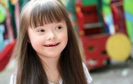 Down Syndrome Characteristics