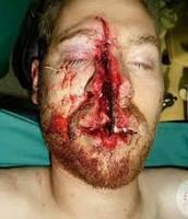 Facial Kickback injury