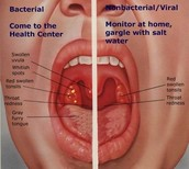 Health effects of Strep Throat