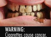 daños visibles en la boca de un fumador