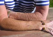 Skin care anti-aging
