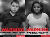 Know about Obesity and fight back!
