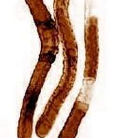 Flobberworm mucus
