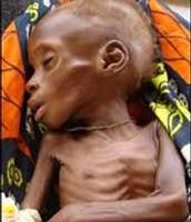 Niño muerto de hambre
