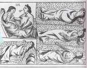 The Effect Smallpox had on the Native People