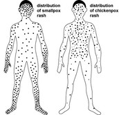 Transmitting Smallpox