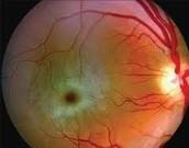 Tay Sachs Eye