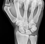 A X-ray of a wrist using regular x-ray machine.