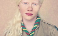 This is another photo of a girl diagnosed with Albinism