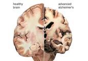 Wat zijn de oorzaken van de ziekte van Alzheimer?